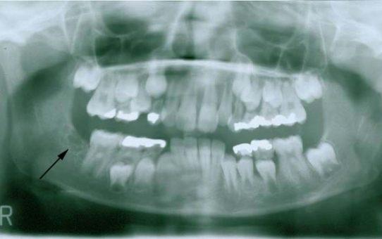 Ameloblastic Fibro-Odontoma