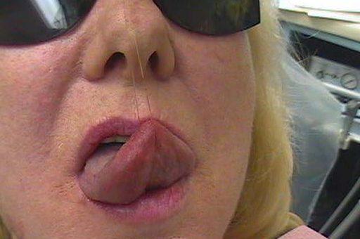 Tongue Tumour